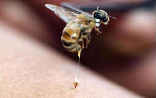 Azərbaycanda arı sancan kişi dünyasını dəyişdi
