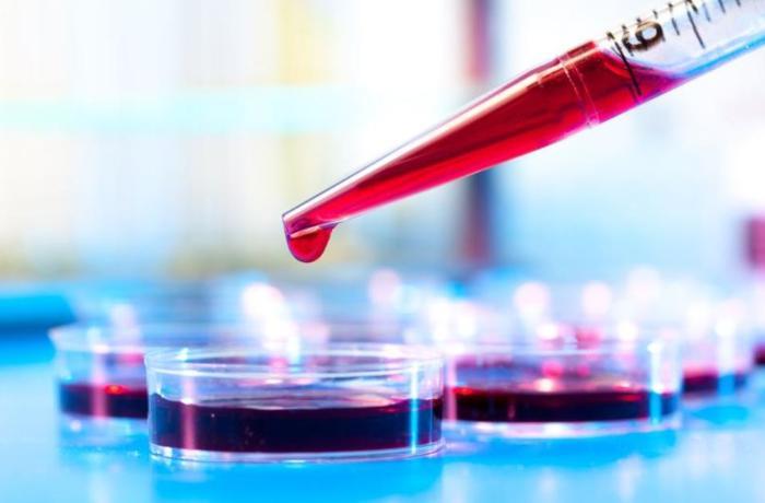 Koronavirus testi nədir, nə vaxt olunur, necə alınır? – Analiz barədə 5 cavab