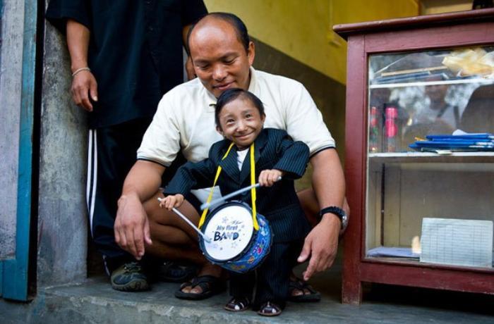 Dünyanın ən kiçik adamı vəfat edib - VİDEO