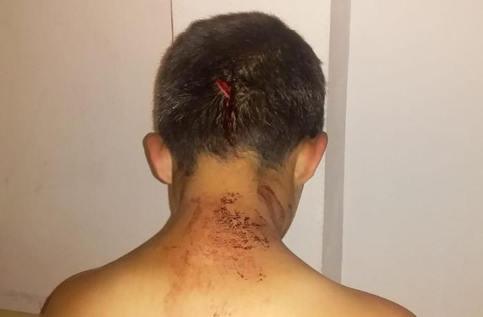 Polis uşağın atası tərəfindən bıçaqlanması ilə bağlı açıqlama verdi