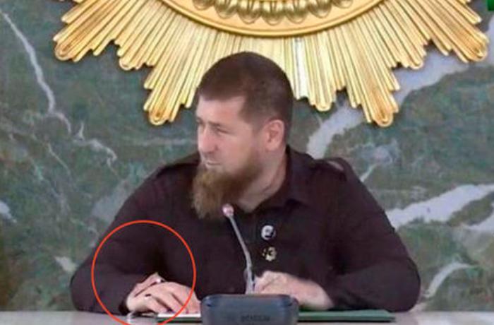 Gizlətməyə çalışdığı əli Kadırovun sirrini açdı - VİDEO