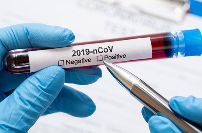 Bu gün Azərbaycanda 128 nəfər koronavirusa yoluxdu