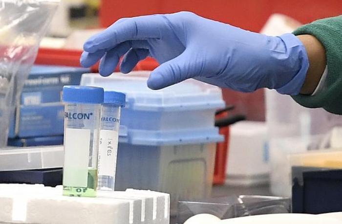 Koronavirusa yoluxanların sayı artdı - SON RƏQƏMLƏR