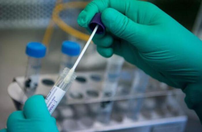 Dünyada 43 milyondan çox insan koronavirusdan sağalıb