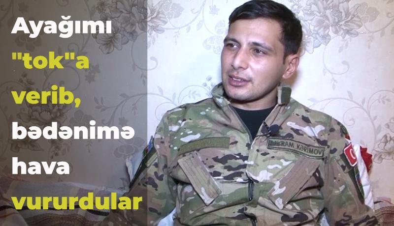 """""""Əsirlikdə ayağımı """"tok""""a verib, bədənimə hava vururdular"""" - VİDEO"""