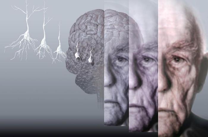 Beyin hüceyrələrini ölümdən və altsheymerdən qoruyan vitamin – Hər gün qəbul edin