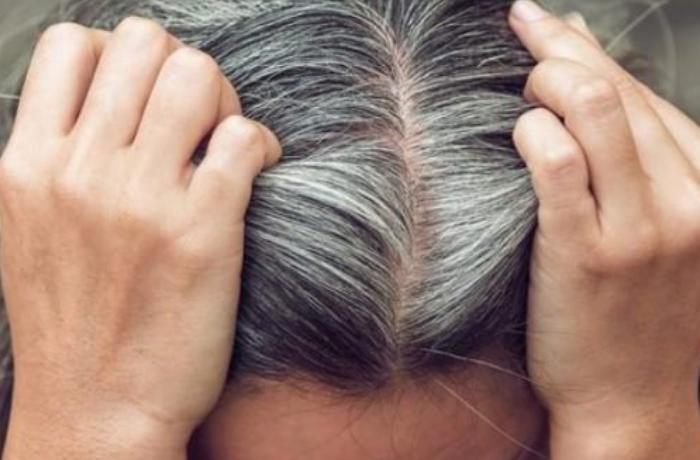 Gənc yaşda saçlar niyə ağarır? - Ağ tükü qoparmaq olmaz